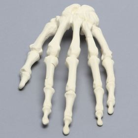 Hand, Multiple Finger Fractures, Solid Foam