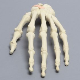 Hand with Scaphoid Fracture and Ligament, Solid Foam