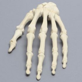 Hand with Scaphoid Fracture, Solid Foam