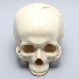 Skull with Craniotomy without Mandible