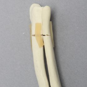 Canine Radius and Ulna with Distal Transverse Fractures, Solid Foam, Small